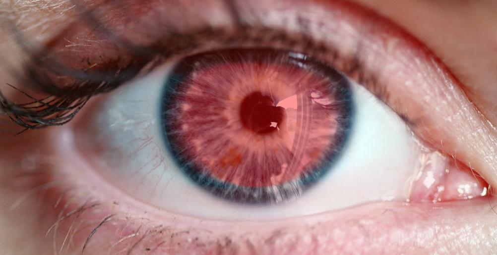 Sehprobleme durch Trockene Augen